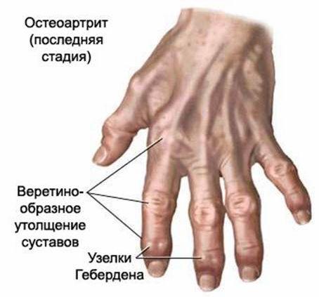 Болезни суставов,остеоартрит