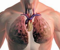 Легкие,лечение легких,болезни легких