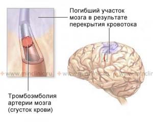 тромбоэ головного мозга