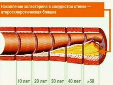 атеросклероз и лечение
