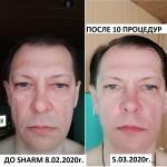 10 процедур SHARM - копия - копия